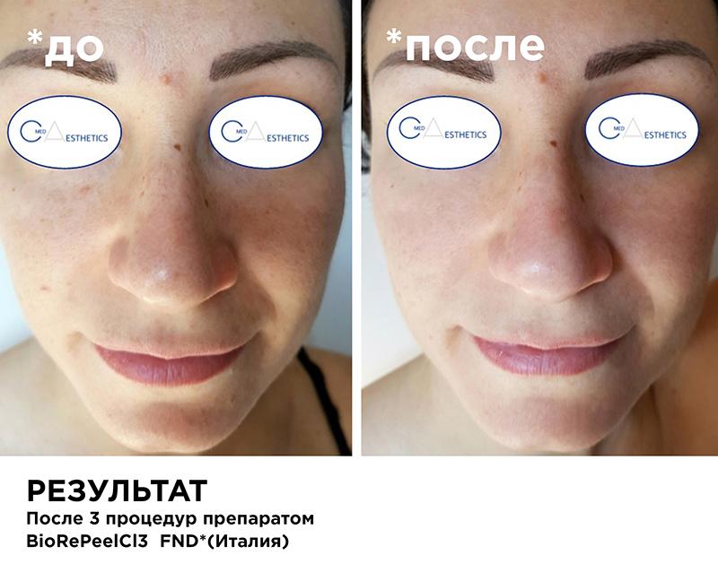 FND - лицо, шея, декольте