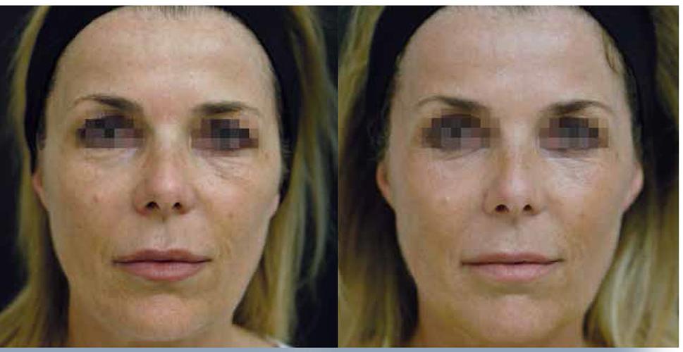 Лечение кожи изнутри: как с помощью гидробустера добиться сияния лица