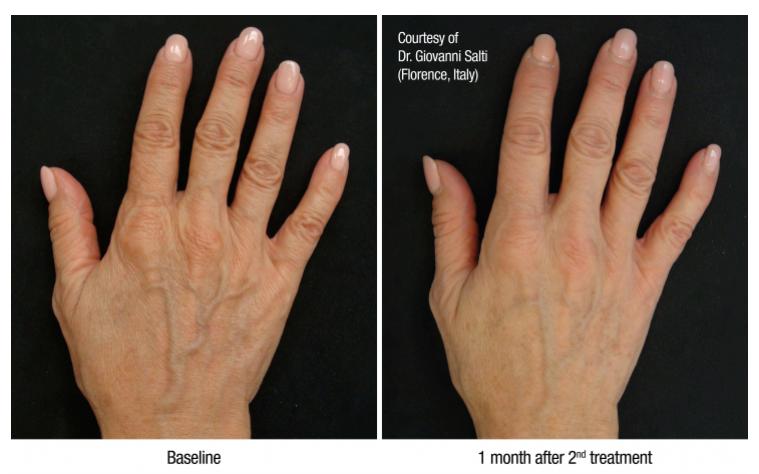 Биоремоделирование кожи препаратом Profhilo: процедура и результаты